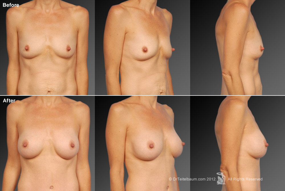 Breast Reduction Before & After 8