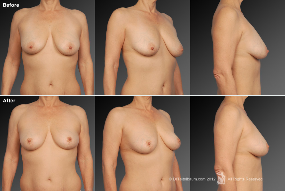 Breast Reduction Before & After 9