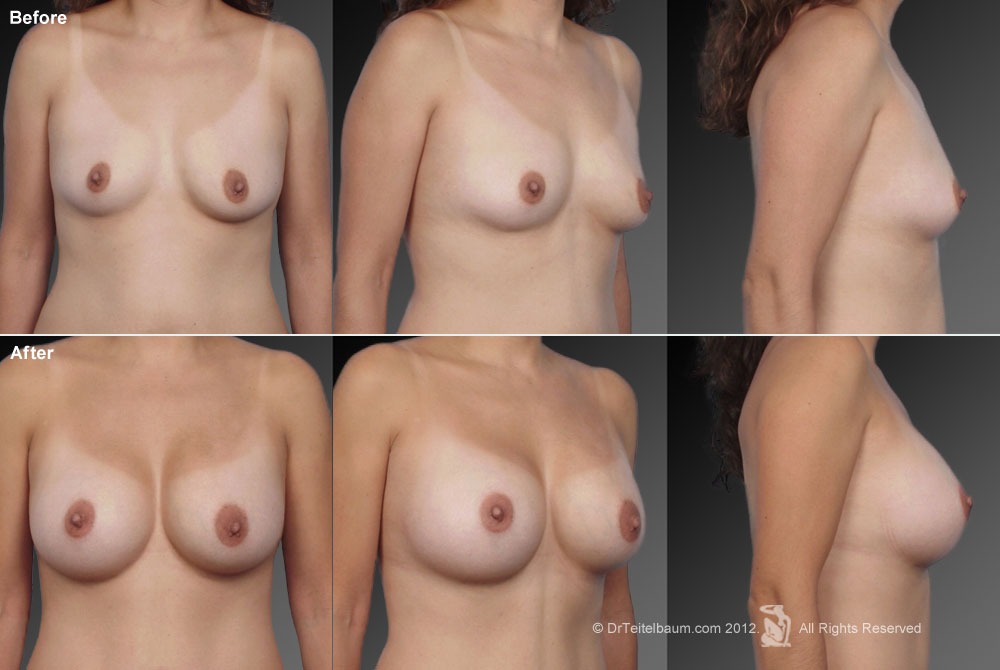 Breast Reduction Before & After 10