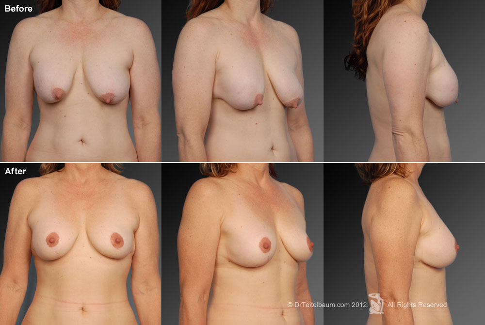 Breast Reduction Before & After 11