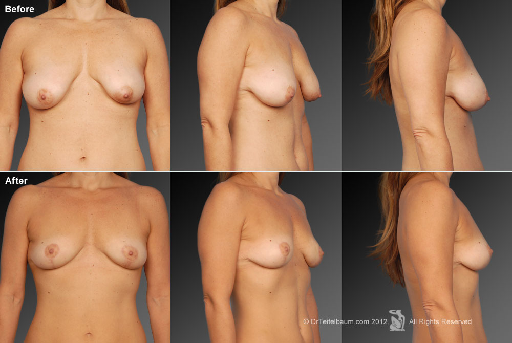 Breast Reduction Before & After 12