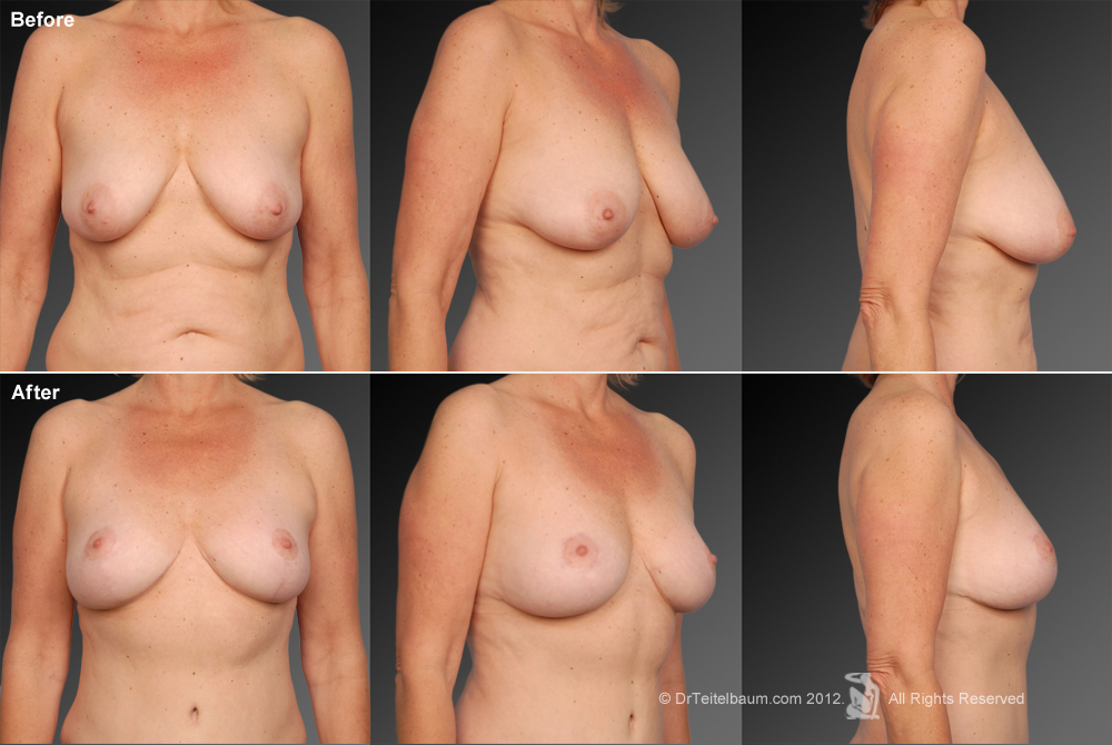 Breast Reduction Before & After 13