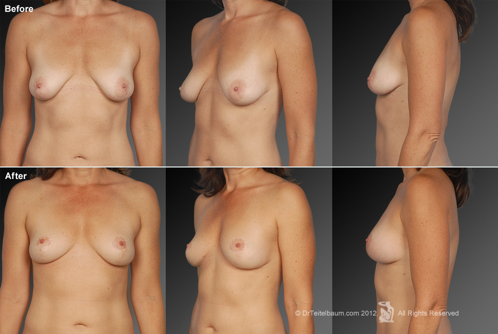 Breast Reduction Before & After 14