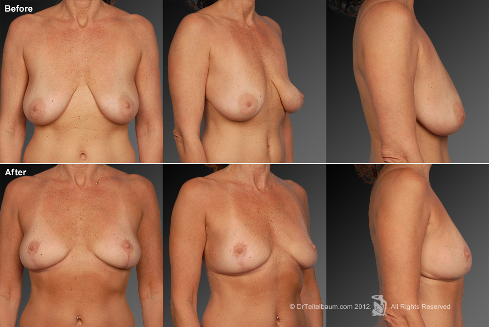 Breast Reduction Before & After 15
