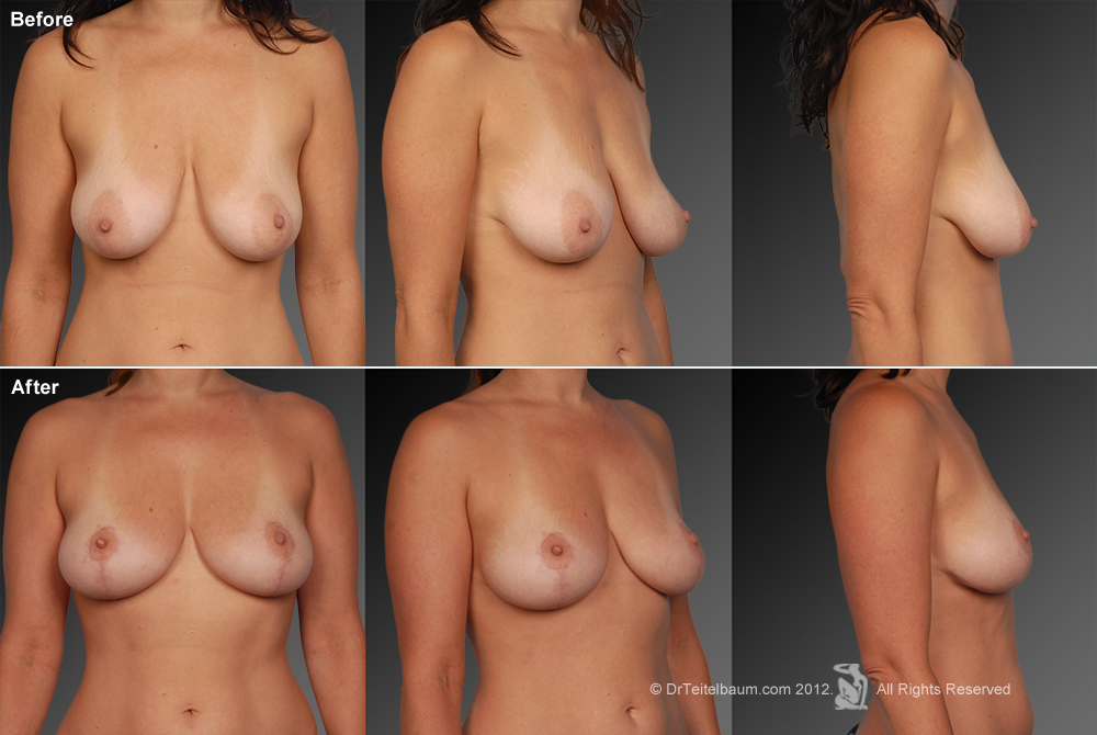 Breast Reduction Before & After 16