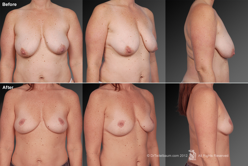 Breast Reduction Before & After 17