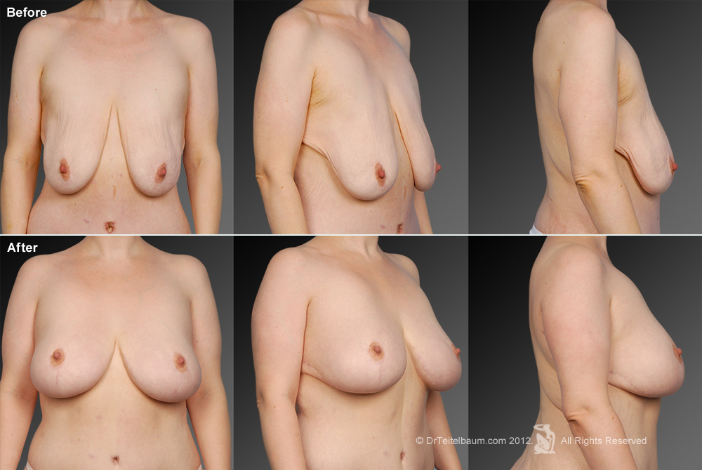Breast Reduction Before & After 18