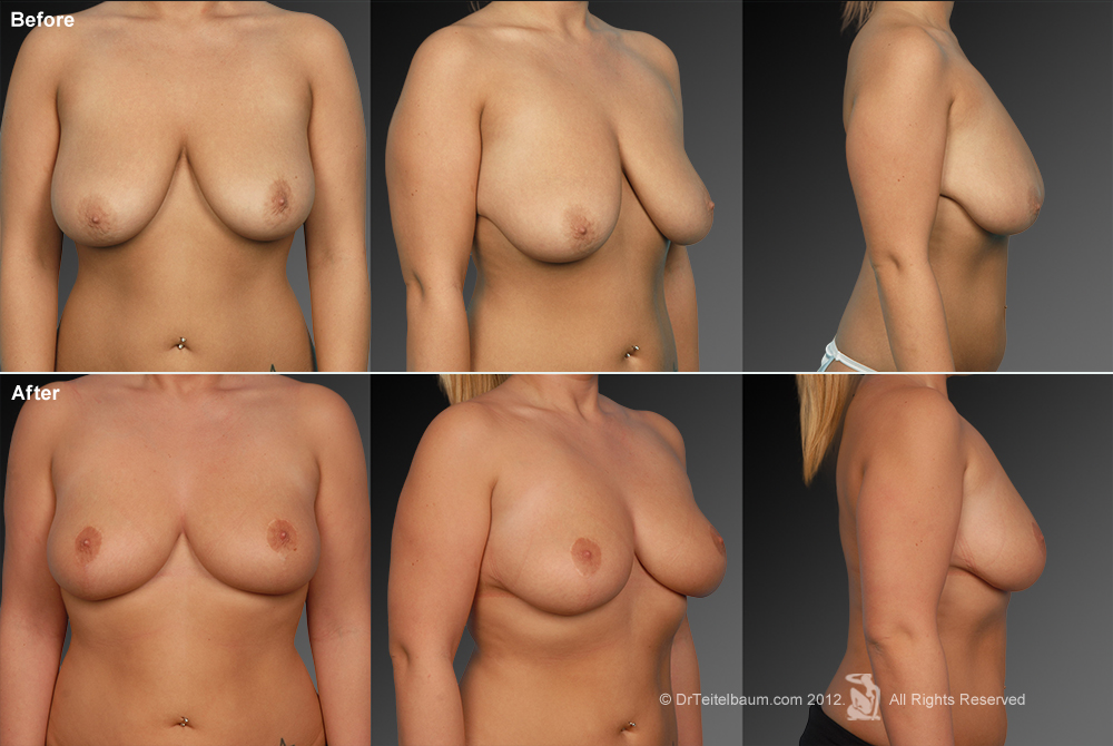 Breast Reduction Before & After 19