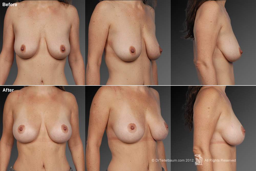 Breast Reduction Before & After 20