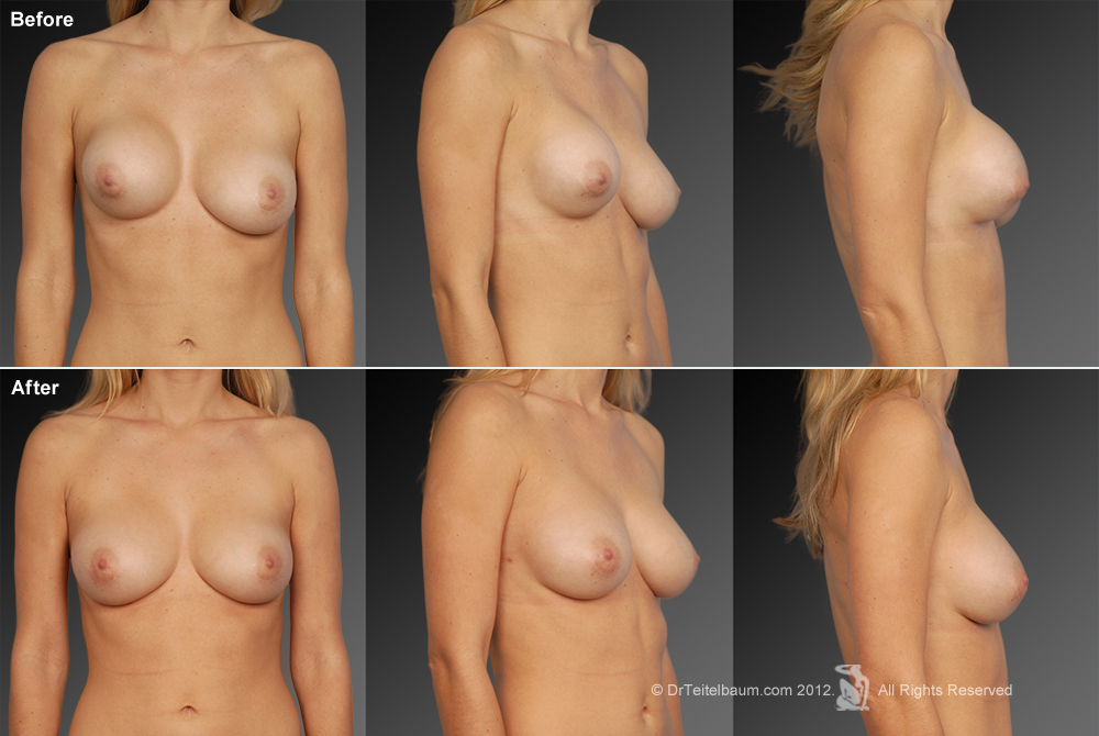 Breast Reduction Before & After 21