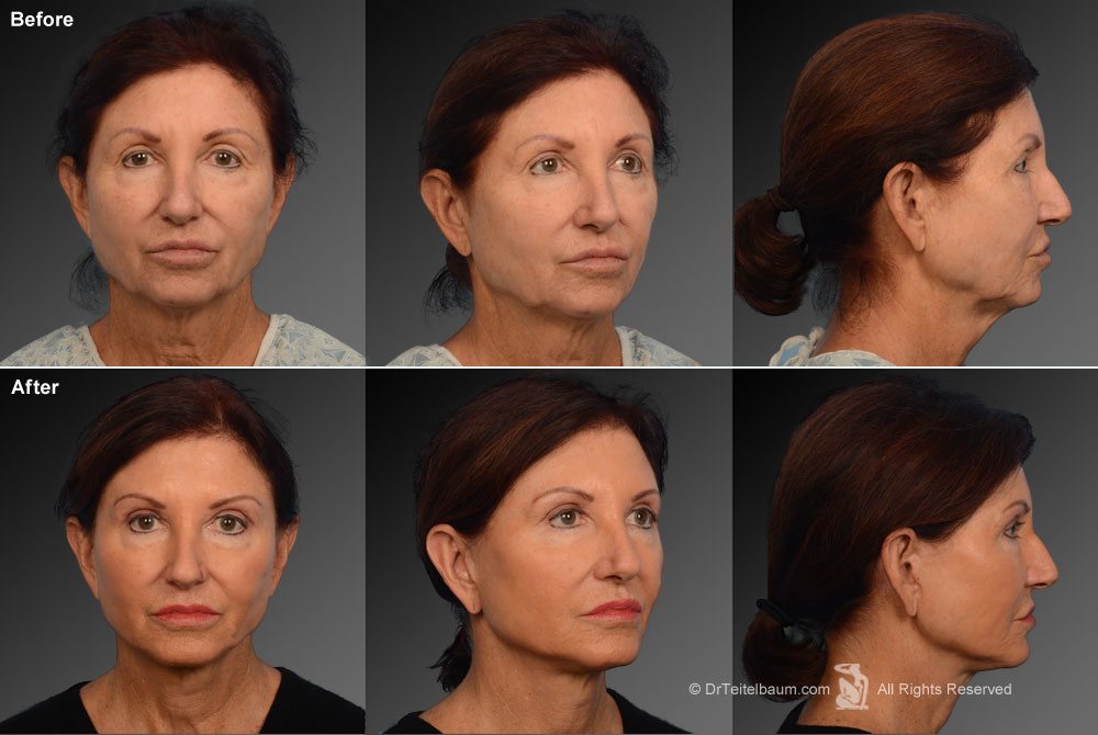 Chin Augmentation Before & After 1