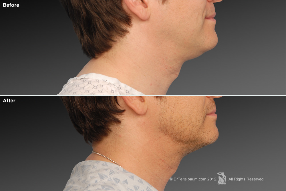 Chin Augmentation Before & After 2