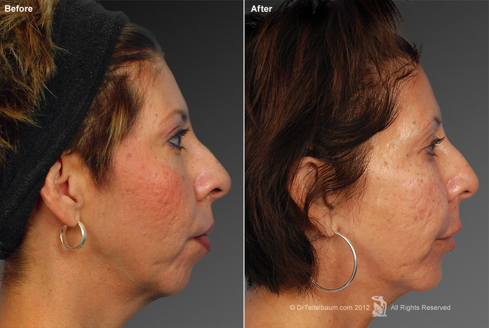 Chin Augmentation Before & After 3