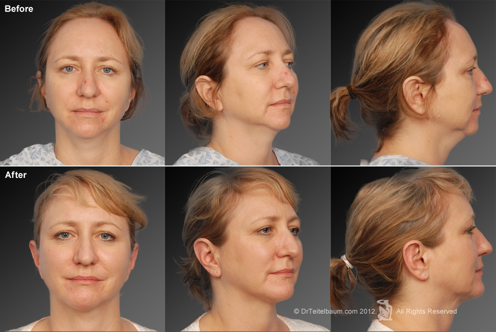 Chin Augmentation Before & After 4