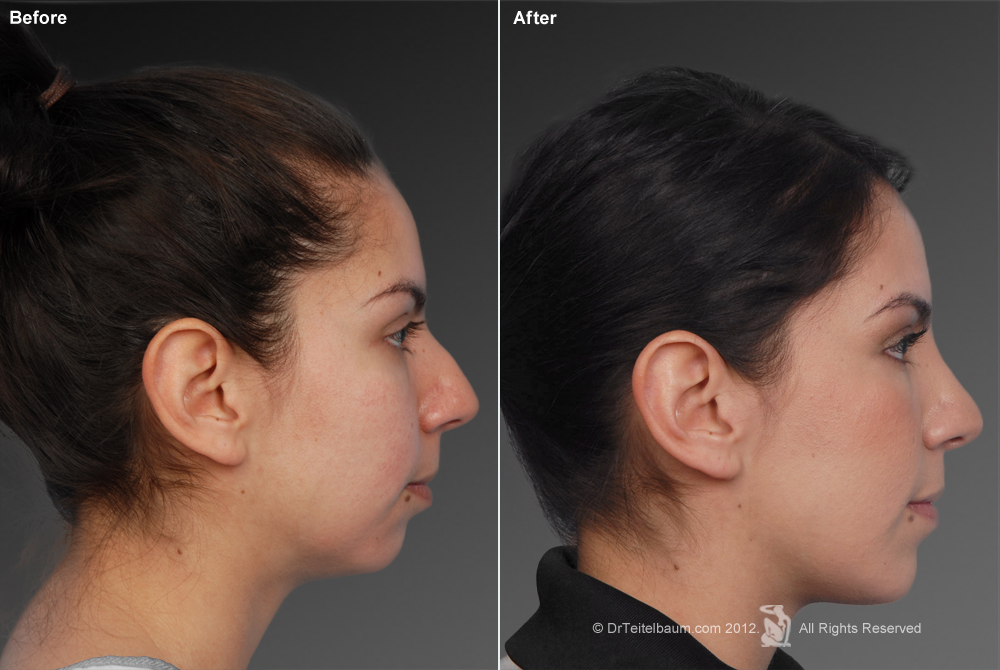 Chin Augmentation Before & After 5