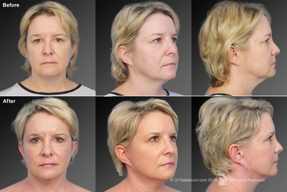Chin Augmentation Before & After 6