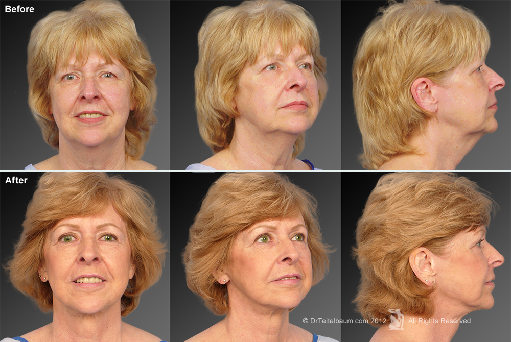 Chin Augmentation Before & After 7